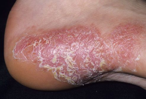 Pictures of Plaque Psoriasis, Pustular Psoriasis, and Other Types of Psoriasis