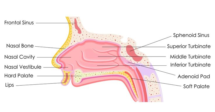 Sinus passages.  Sinusitis and upper airway symptoms in bronchiectasis.  Rhinosinusitis is inflammation of the nasal passages and paranasal sinuses, which leads to a build-up of mucus production which may increase the risk of infection (Fig.1).  Upper airway symptoms in the form of rhinosinusitis may present in some people with bronchiectasis.