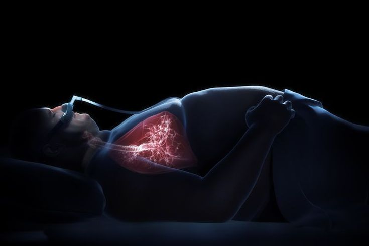 Ehlers-Danlos Syndrome & Sleep Apnea? http://endsofsnore.com/how-to-make-someone-stop-snoring-while-sleeping/is-snoring-bad-for-my-health/
