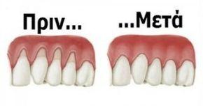 Καμιά φορά, ο ιστός γύρω από τα ούλα φθείρεται και φαίνεται σαν να ξεθωριάζουν τα ούλα σας. Εκτίθεται μεγαλύτερη επιφάνεια των δοντιών, το τέλειο μέρος για