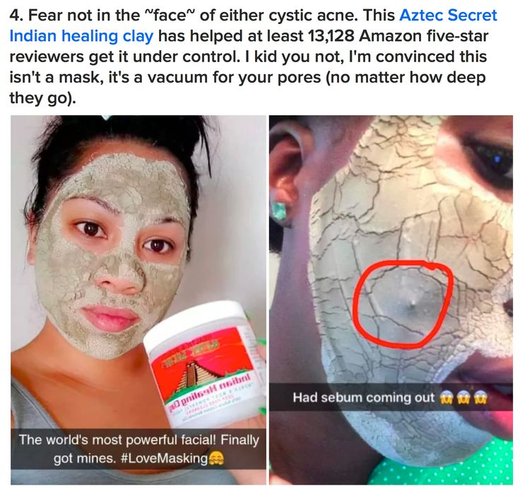 Indian Healing Clay mask, amazon face mask, best face mask, how to get rid of acne, best face mask for acne, clay face mask, most powerful face mask