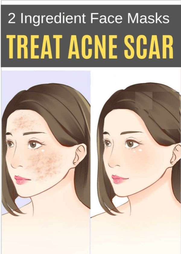 2 Ingredient Face Masks to Treat Acne Scar