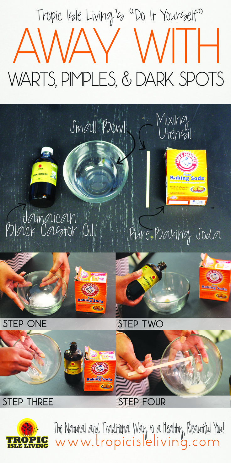 Materials Needed:  1 Tbsp of JBCO 1 Tbsp of Pure Baking Soda 1 Small Bowl  1 Mixing Utensil   Step 1: In a small bowl, add 1 tbsp of baking powder Step 2: Add 1 Tbsp of Jamaican Black Castor Oil  Step 3: Mix Contents Together Until It Forms A Paste  Step 4: Using Your Mixing Utensil, apply the paste to affected area. ( Leave on from anywhere between 15 mins to Over night)   ** Be Sure To Wash Off Paste: This Treatment Can Be Done As Often As Needed**
