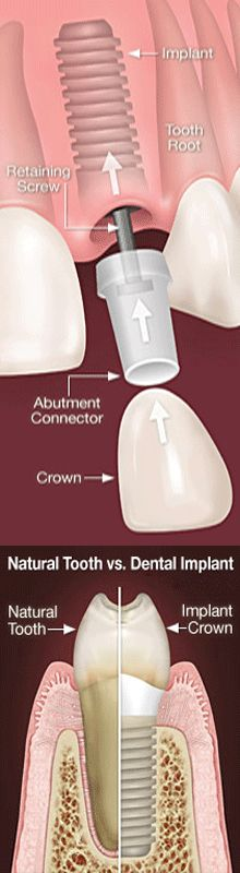 Single #Tooth #Implants/Implants for Missing Front #Teeth.