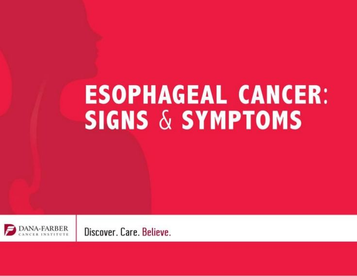 What are the signs and symptoms of Esophageal Cancer. Learn about what esophageal cancer is; how it's diagnosed; and how it's…