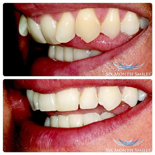 We are happy to be the first in the region to provide the revolutionary Six Month Smiles braces system from the USA. Get #straightteeth in only 6 months! Why wait? Call us on 04-3998440 for a free consultation.