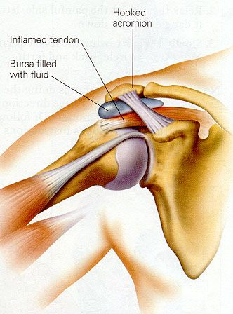 Physical Therapy DataBase: Shoulder Impingement  Repinned by SOS Inc. Resources http://pinterest.com/sostherapy.