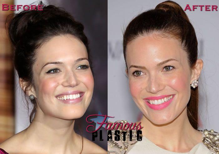 Celebrity Secrets: Age Retarding Botox And Fillers - SKIN ...