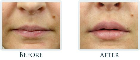 http://www.thriveportland.com/dermal-fillers/botox-cosmetic/index.html #Botox & #DermalFillers Before After Image 08