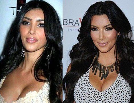 Dress style kim kardashian before plastic surgery