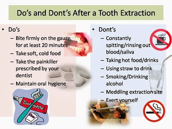 Do S And Dont S After Tooth Extraction Daniel Steckler