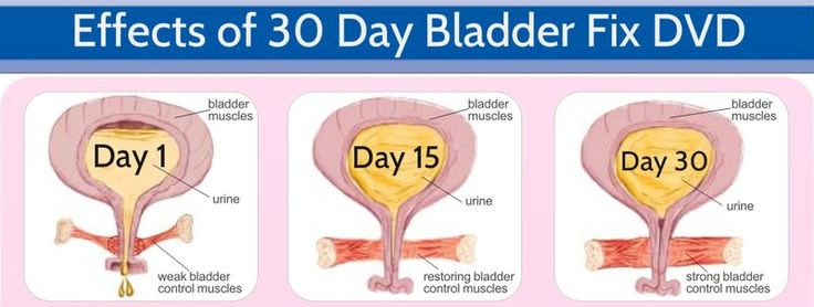 30 Day Bladder Fix Workout DVD - Natural Remedy for Urinary Incontinence