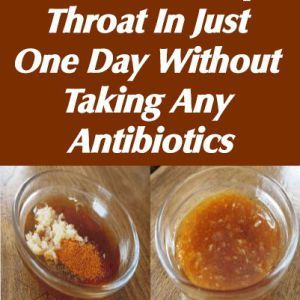 What is Strep Throat? A bacterial infection of the throat, strep throat often makes the throat feel sore and scratchy. Common signs and symptoms of strep throat include throat pain, difficulty swal…