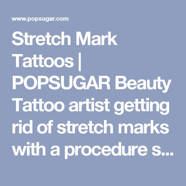 Stretch Mark Tattoos | POPSUGAR Beauty Tattoo artist getting rid of stretch marks with a procedure shown here.