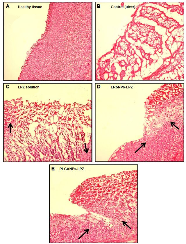 Figure 7 Histopathological images of healthy tissue and healing ulcer tissues.