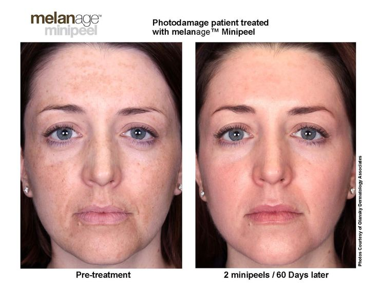 11 best chemical peels before and after pics images on pinterest mini peel 2 peel exampleg 16501275 solutioingenieria Gallery