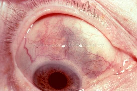 RA: scleromalacia = rheumatoid nodule at sclera