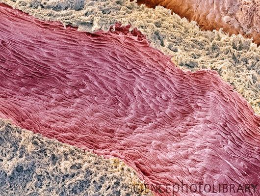 endothelial cells –Ovarian blood vessel, SEM