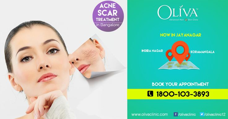 Don't let the scars spoil your beauty;Get rid of them with Pixel laser treatment @OlivaClinics. Performed by qualified cosmetic dermatologists, Pixel laser treatment clears the scars away and reveals fresh new beautiful clear skin.