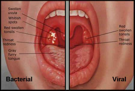 Bacterial versus viral sore throat: patient presentation