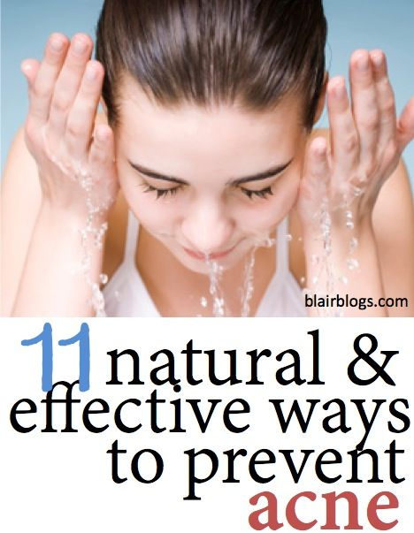 11 Natural & Effective Ways to Prevent Acne