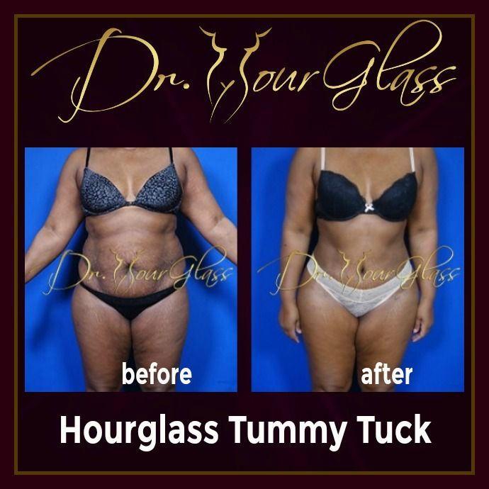 She's so happy with the outstanding result of her Hourglass Tummy Tuck procedure. Women who may have a dilemma when it comes to their loose skin especially on the abdomen can undergo this procedure provided that she is in a good health condition. How about you? Do you want this kind of transformation?