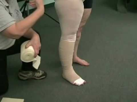 25 best images about lymphedema treatment for legs on Pinterest