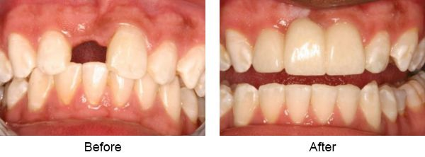 This Patient Had Lost His Front Tooth Several Years Prior