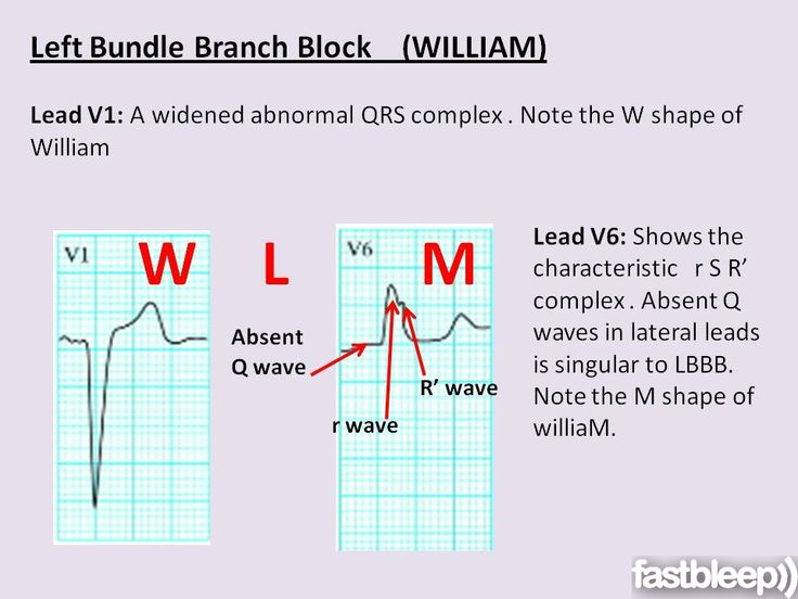 The left bundle branch is supplied by both the right and left coronary arteries. Therefore LBBB is common in those with extensive coronary artery disease and can be the consequence of an acute anterior MI. It is also seen in those with hypertension and cardiomyopathy.  ECG Features:      A widened QRS complex     A secondary R wave in V6     Absent Q waves in V5/V6