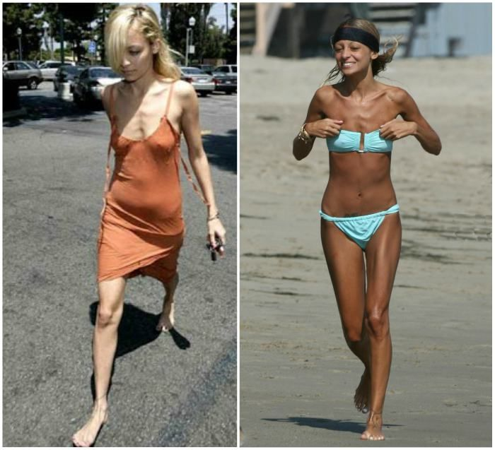 Nicole Richie's weight loss