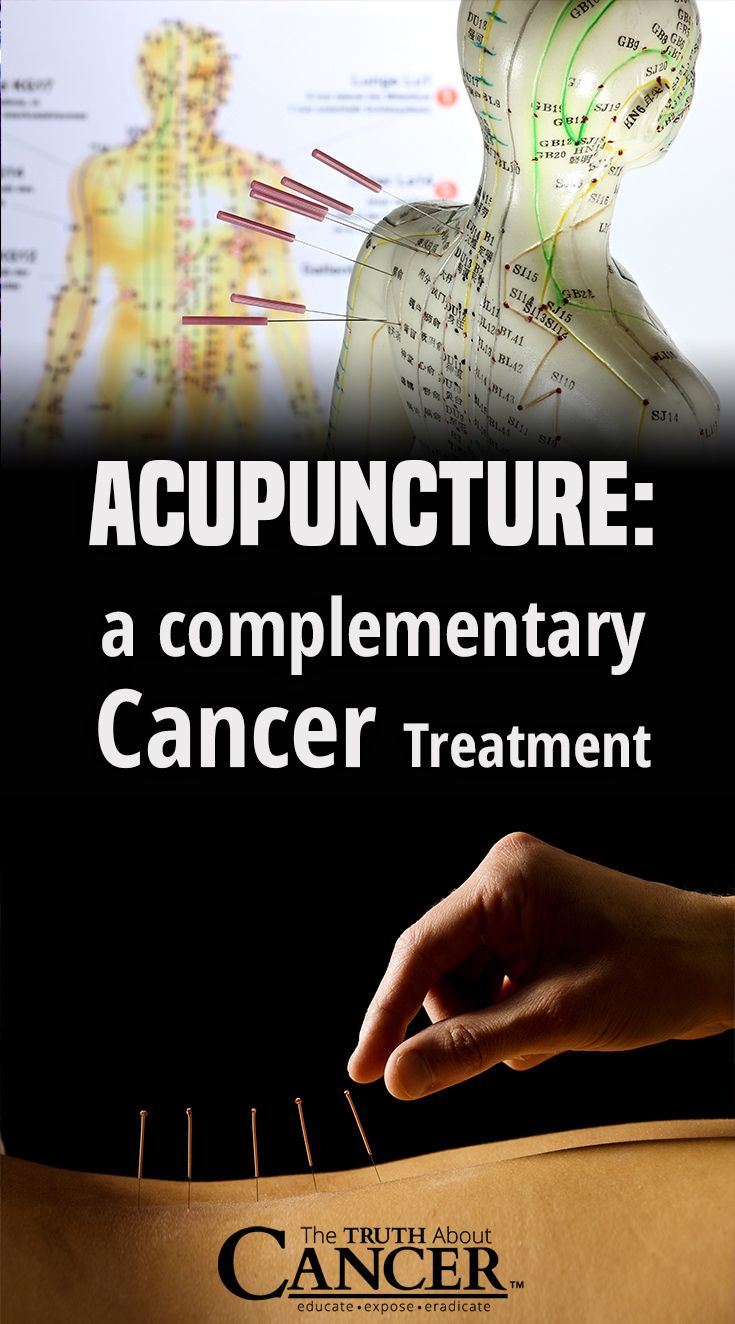 Acupuncture a complementary cancer treatment cancer cureblood