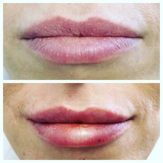 Beautiful lips take artistry and precision. See the #beforeandafter of Juvederm to plump and define the lip pillows, vermillion borders, and Cupid's bow. Natural and subtle is what our patient wanted. #lipsense #pout #nobodyknows http://ameritrustshield.com/ipost/1546161517946712622/?code=BV1EbVql7Iu