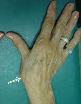 Nyeregízületi arthrosis - Dr. Osgyán Henrik kézsebész főorvos magánrendelése, leggyakoribb kézbetegségek leírása, kezelése