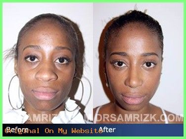Rhinoplasty Before And After | Before and after photo of a 25 year old female patient who had…