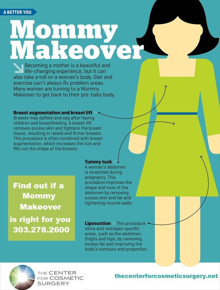 Is a Mommy Makeover right for you? #mommymakeover #plasticsurgery