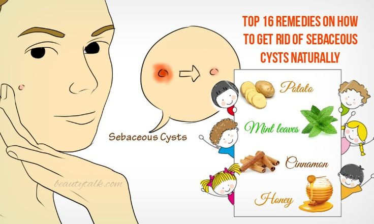 Top 16 Remedies On How To Get Rid Of Sebaceous Cysts Naturally