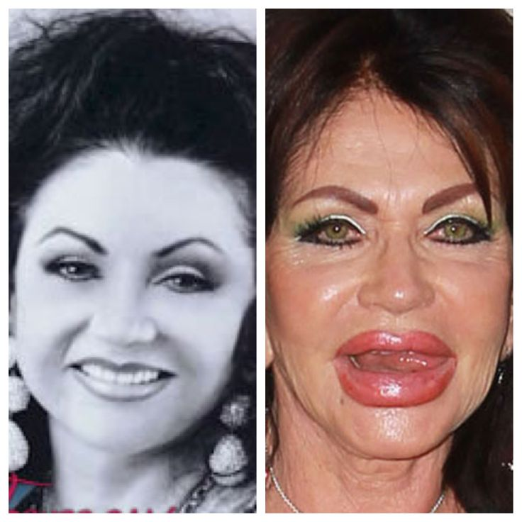 Plastic Surgery Gone Wrong Jackie Stallone Plastic