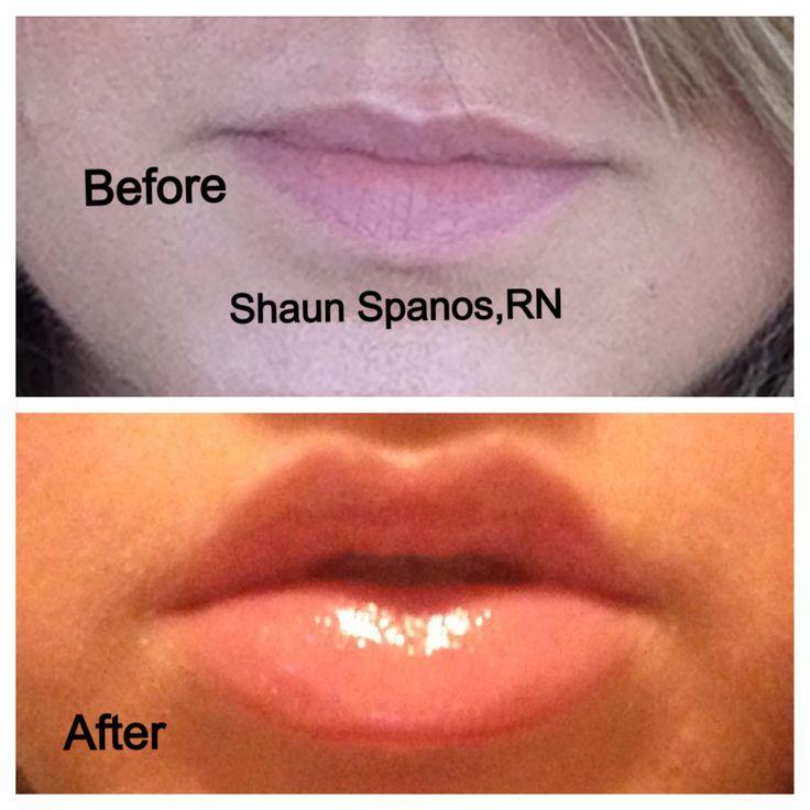 Lip Augmentation -wooo cant wait! 13 days.