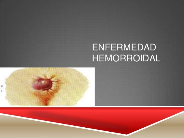 Enfermedad hemorroidal by Pharmed Solutions Institute via slideshare