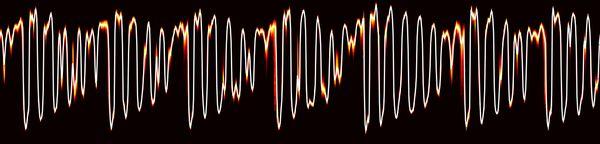 WaveNet: A Generative Model for Raw Audio