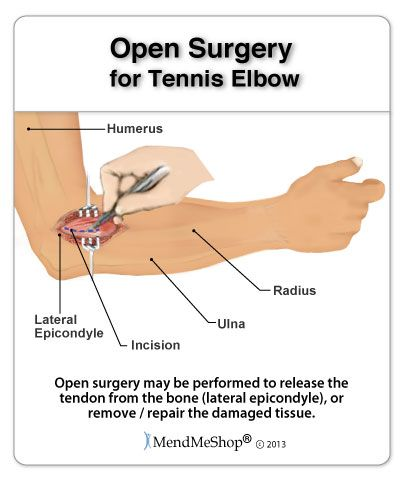Tennis Elbow open elbow surgery - 90% of people suffering from Tennis Elbow can heal through conservative treatment methods.