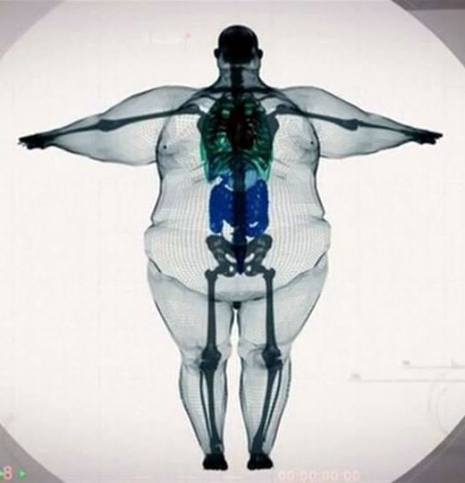 image of skeletal structure within excess weight