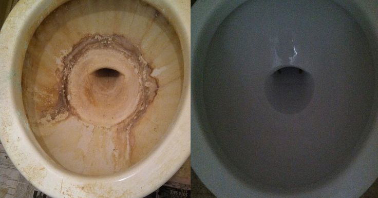 It doesn't even look like the same toilet bowl- amazing!  We  thought we would have to throw the entire toilet away and get a new one- Nop...