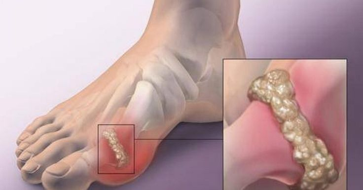 Natural Remedies That Reduce Uric Acid Gout is one of the most common types of arthritis, which is followed by severe pain in joints (mainly near the big toe). Gout attacks are more intensive during the night and are accompanied by redness, heat, and swelling on the affected area. When the intensity of the pain is so high, the people can't even touch the inflamed joint. What Causes Gout Gout attacks are usually triggered by things like excess alcohol intake, dehydration, crash diet, injury…