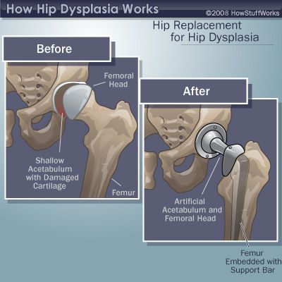 53 best images about adult hip dysplasia on pinterest