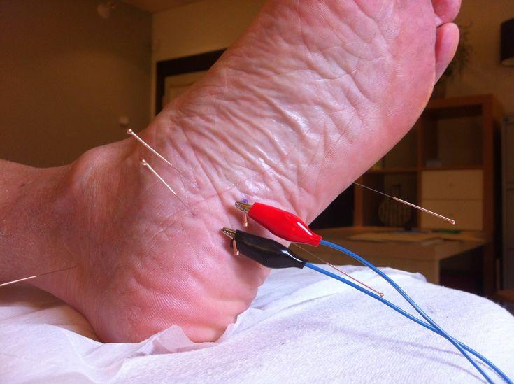 acupuncture pour Épine de Lenoir- Heel Spurs