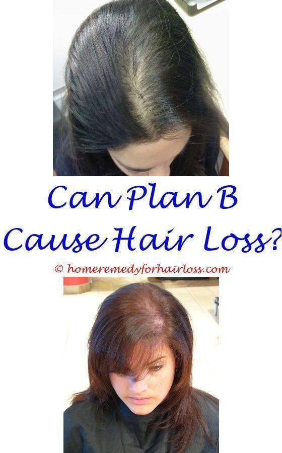 Opinion Masterbation and hair loss version