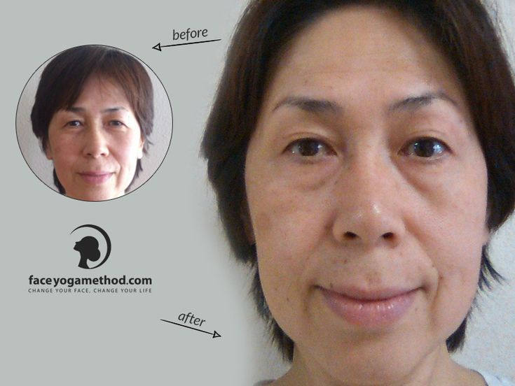 "Yasuyo was concerned about her droopy eyelids, nasolabial folds and sagging cheeks. She tried 10 poses a day for 1 month and got great results. ""My eyes open wider, and they are getting almost the same size. My skin feels much smoother and softer"". http://faceyogamethod.com/beforeafters/"