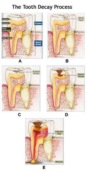 Las diferentes etapas de una Caries. Tu dentista de Madrid #dentista @clinicabonadent