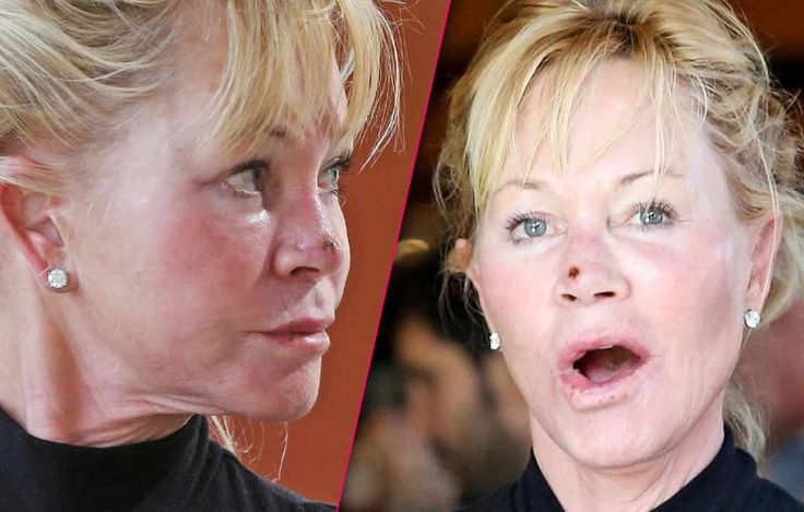 Melanie Griffith Spotted With Odd Scab On Her Nose – More Plastic Surgery? #MelanieGriffith celebrityinsider.org #Hollywood #celebrityinsider #celebrities #celebrity #celebritynews